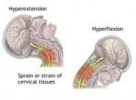 Image explaining mechanism of whiplash