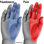 Image of carpal tunnel symptom distribution